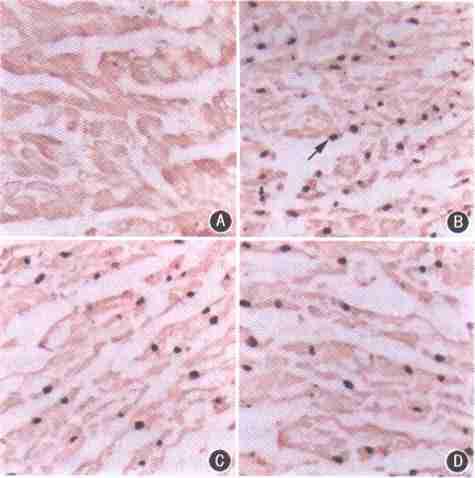 心肌细胞经过组织培养过程而新生一代的心肌细胞也有自律性.